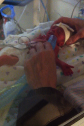 Teeny, tiny baby. The nurse is holding the tube up so she can breathe. They were in the middle of intubating her.